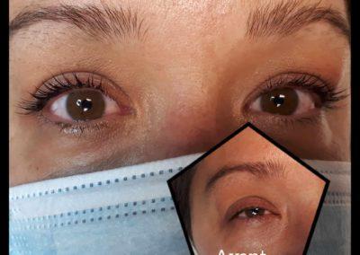 Photo avant/après d'un rehaussement de cils Yumi Lashes, esthéticienne Emeline Esthétique 85130 La Verrie